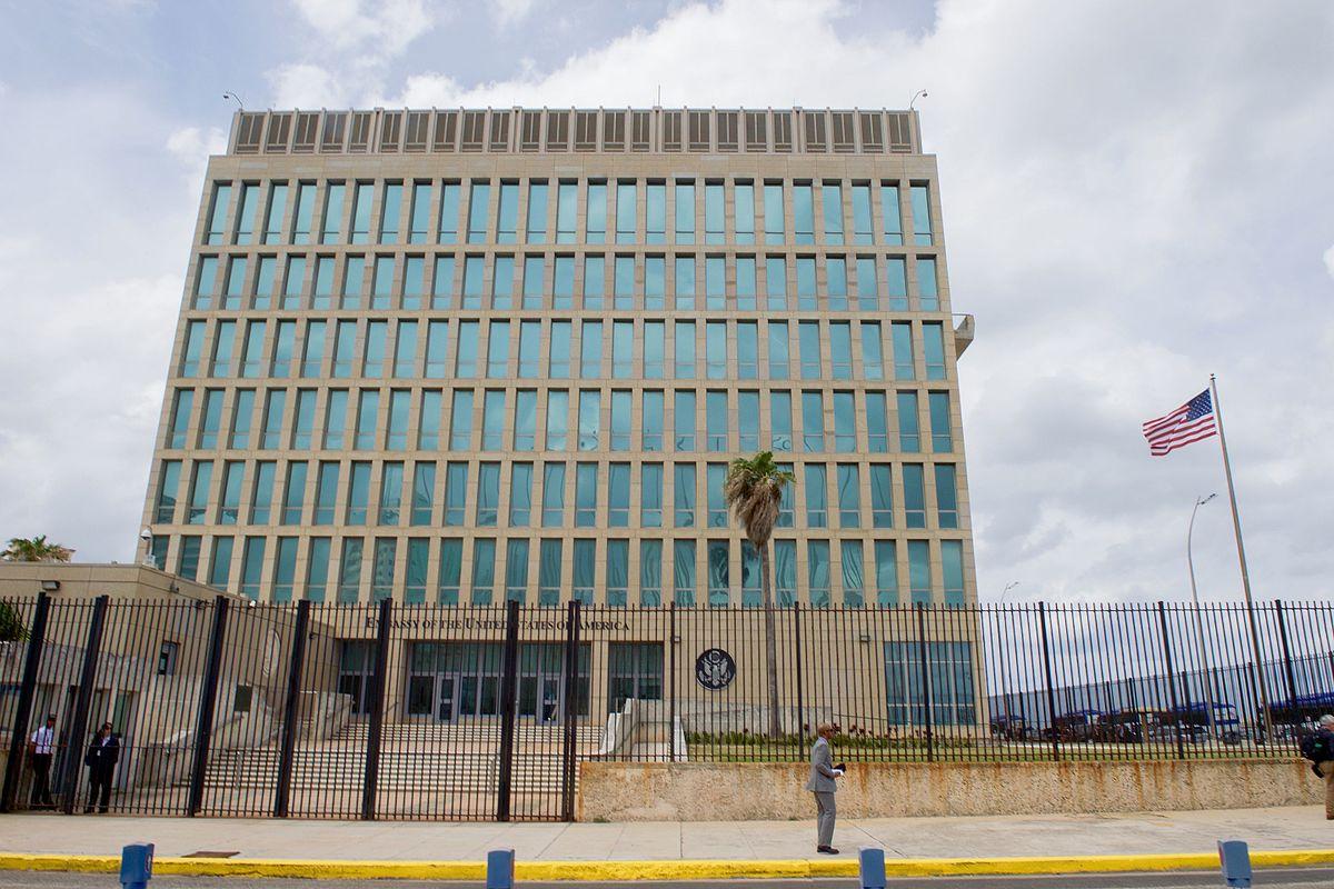 """LOS EMPLEADOS DE LA EMBAJADA DE CUBA TIENEN """"ANOMALÍAS CEREBRALES"""" SEGÚN LOS DOCTORES"""